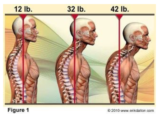 Abnormal Muscle Tension and Postural Distortions.