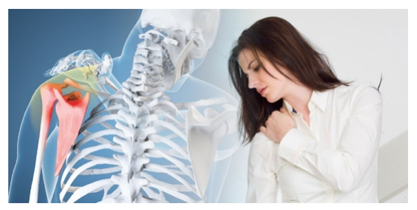 Huntington Beach chiropractor shoulder pain